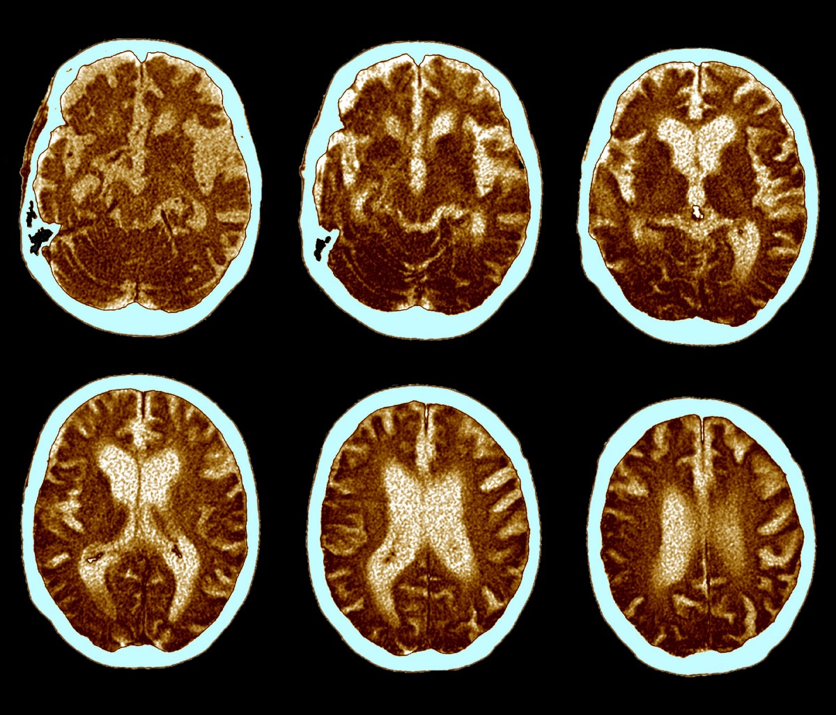 Why Drugs for Alzheimer's Are So Hard to Develop