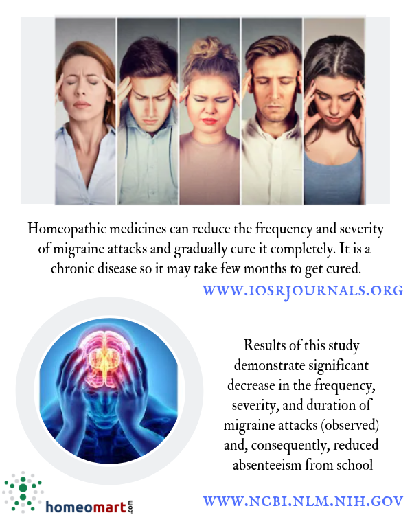 Homeopathy medicines for migraine from SBL, Dr Reckeweg, Schwabe