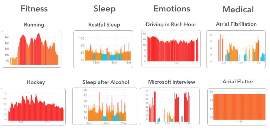 What do normal and abnormal heart rhythms look like on Apple Watch?