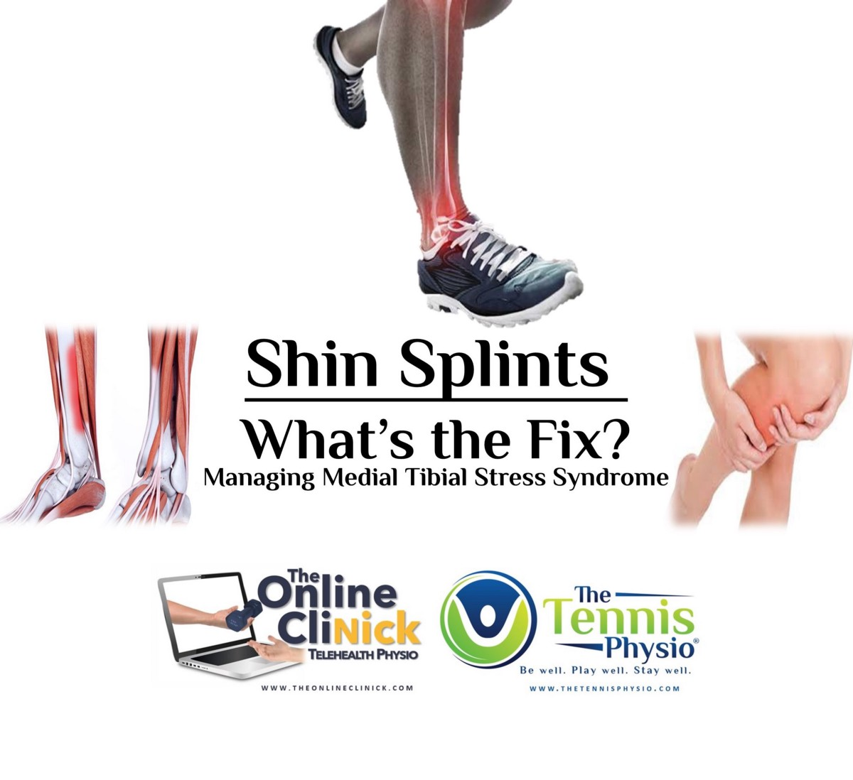 Shin Splints — What's the Fix? (Managing Medial Tibial Stress Syndrome) |  by The Tennis Physio | Medium