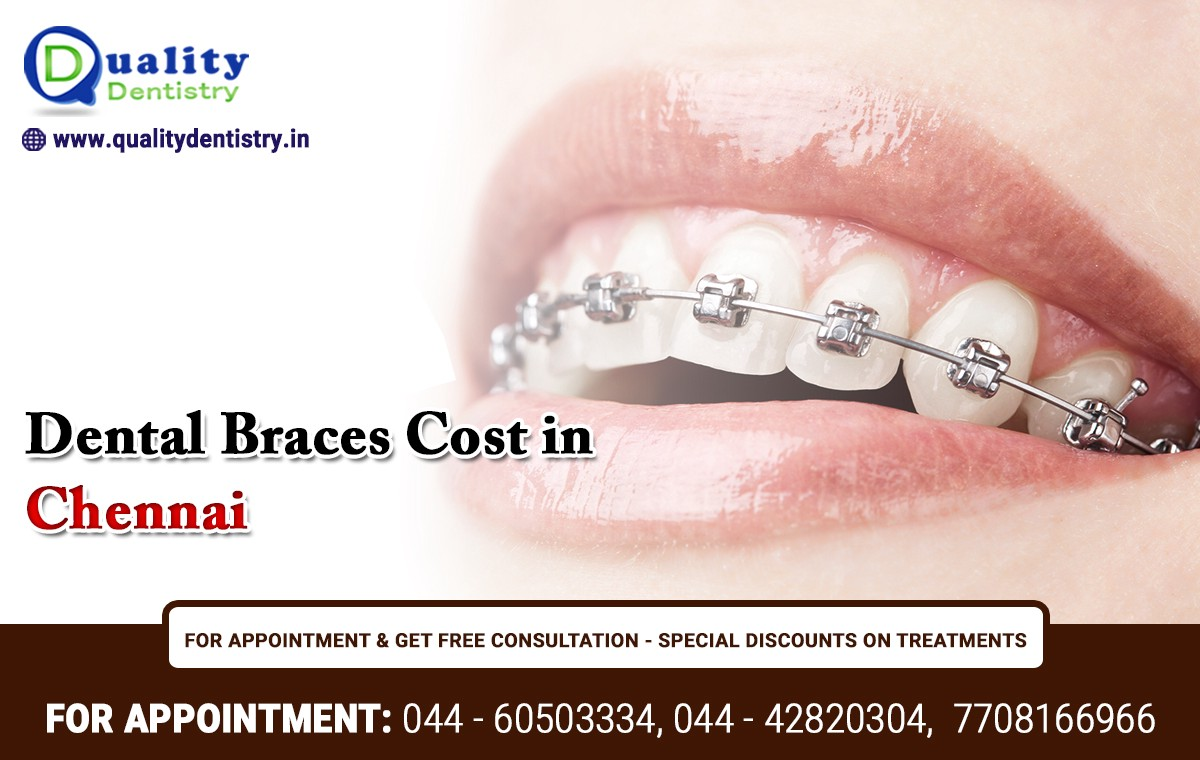 No Consultation Cost — Reasonable Price For Braces Treatment