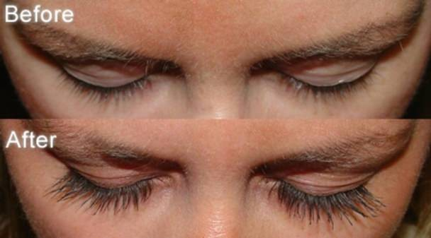 456ce92da8a How to Make Your Eyelashes Grow Faster by using Careprost?