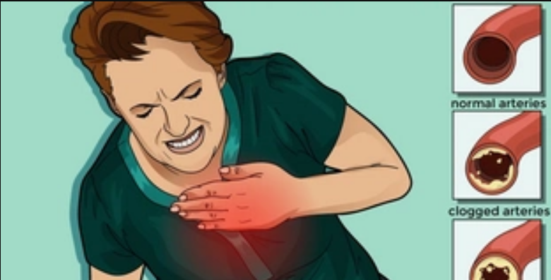 20 foods that can clean your arteries and protect you from heart attacks
