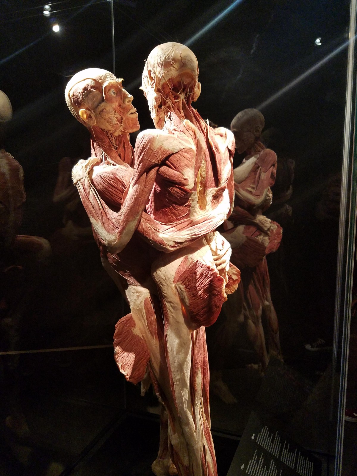 The Unhealthy Anatomy Of Body Worlds - Jerry Wu