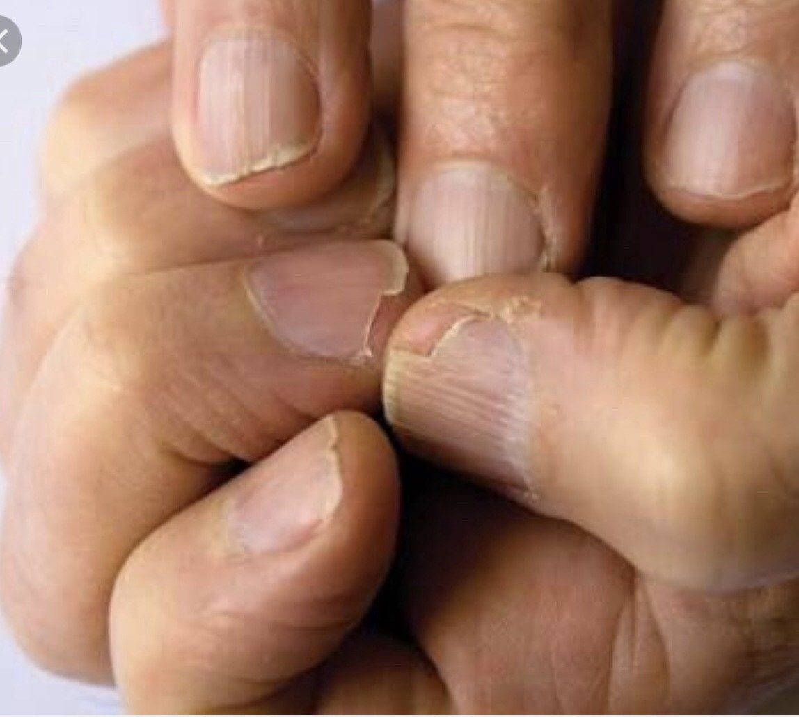Onychorrhexis (brittle nails) - TODAY SCIENCE - Medium