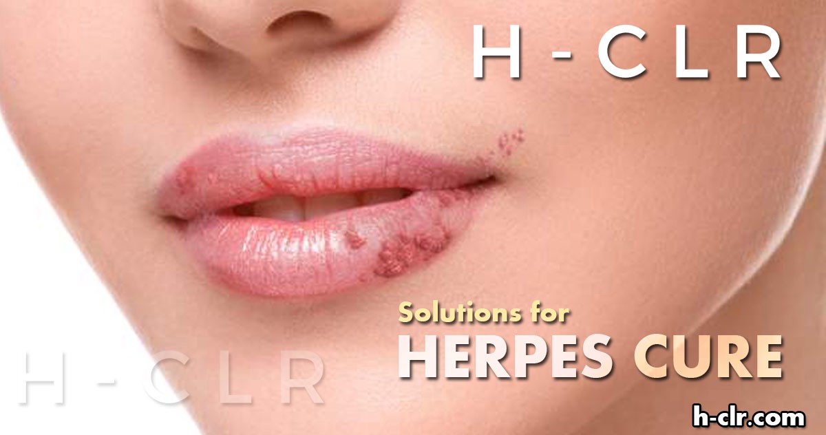 Methods for Treatment of Herpes - H Clr - Medium