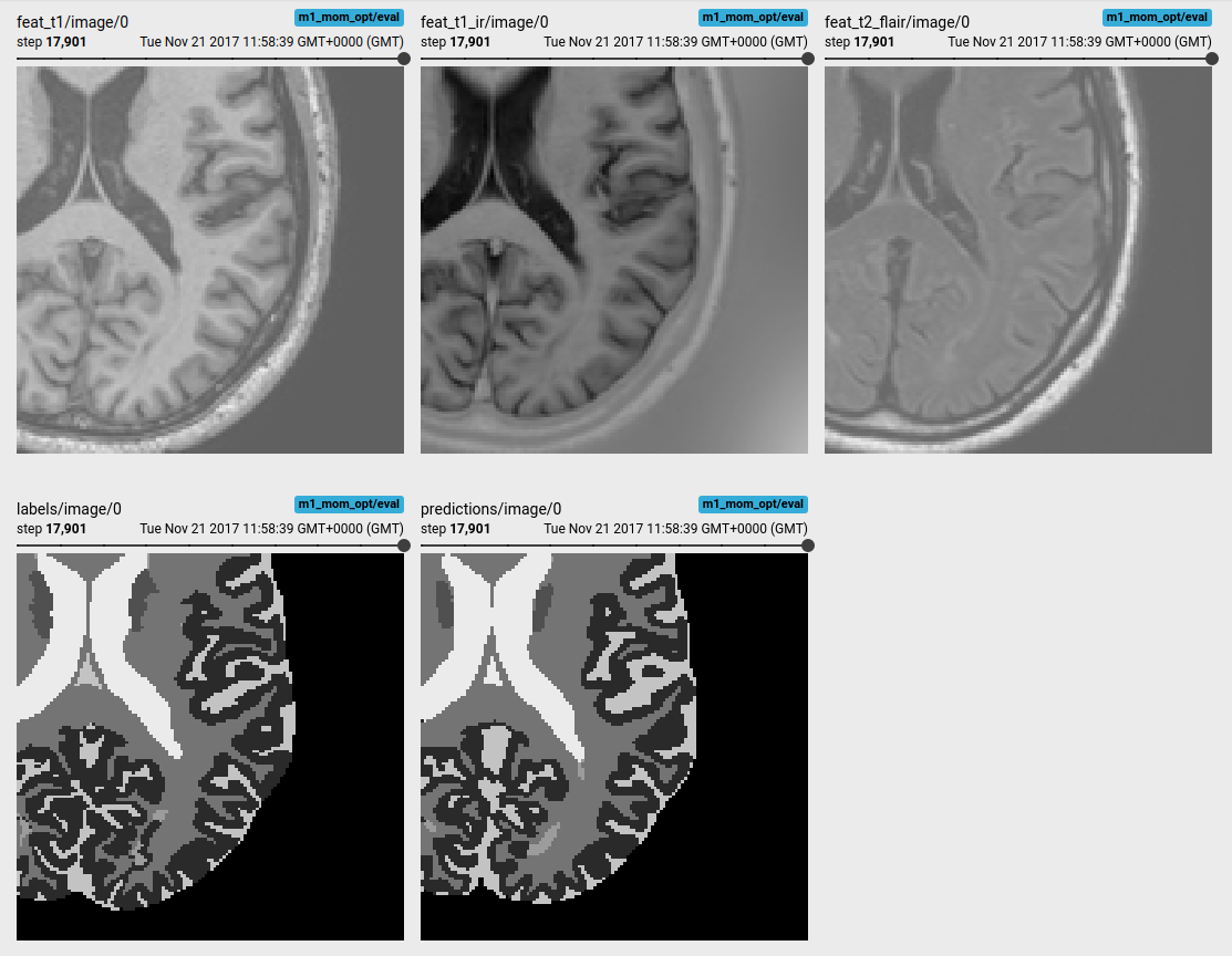 An Introduction to Biomedical Image Analysis with TensorFlow and DLTK