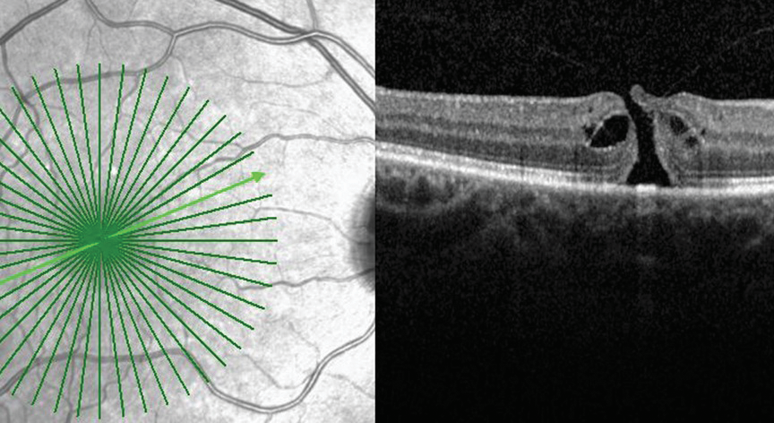 Vitreomacular traction and full thickness macular hole