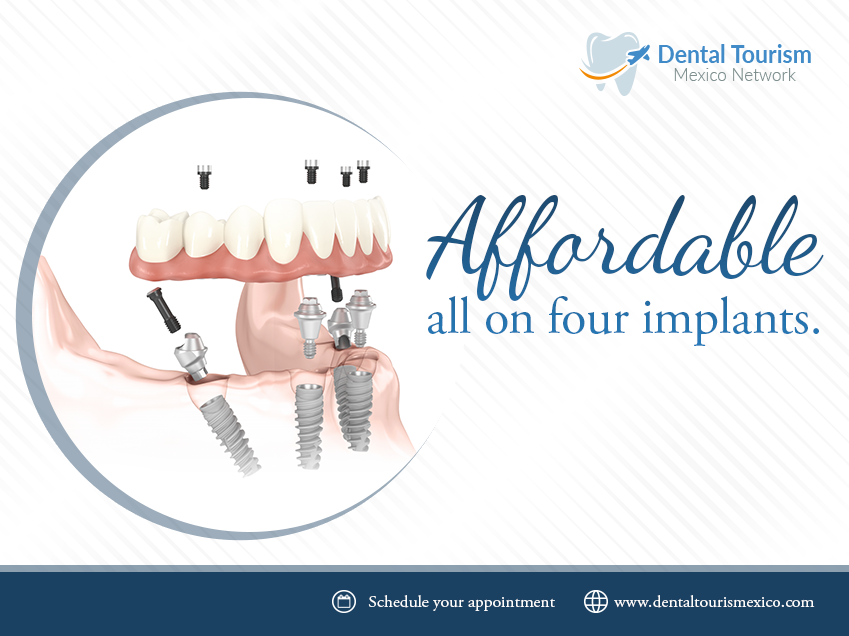 All On four Dental implants in Mexico - Dental Tourism - Medium