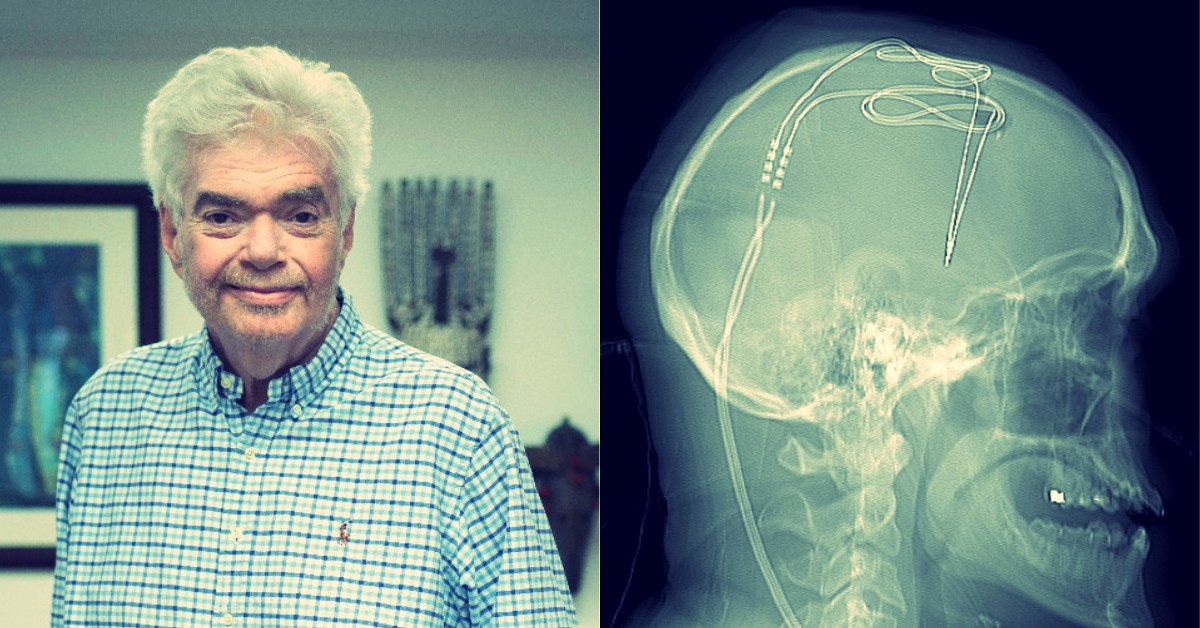 The Scientist Who Got a Brain Implant to Cure His Alcoholism