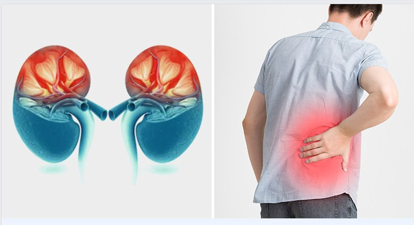 10 Serious Signs Your Kidneys Aren't Functioning Properly