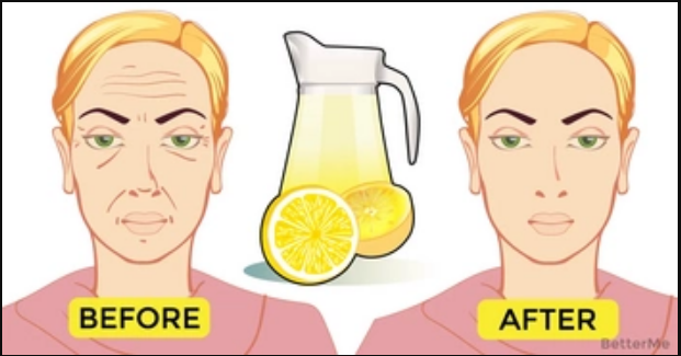 This homemade face lemon toner can make your wrinkles disappear
