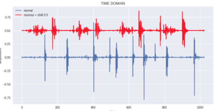 How to detect anomalies in Audio Signal Processing of the heart with
