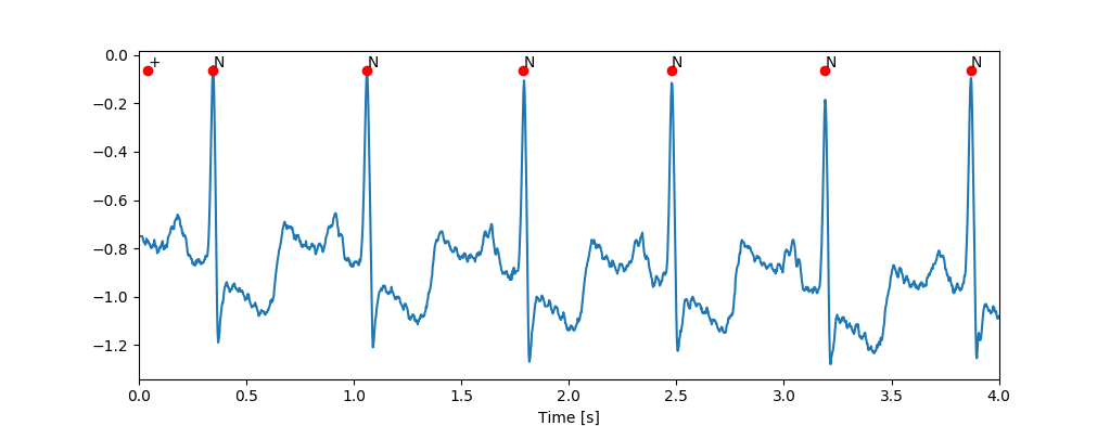 Machine Learning for medicine: QRS detection in a single channel ECG