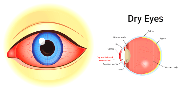Heres What We Know About Causes Of >> Dry Eye Symptoms And Causes 10 Home Remedies For Dry Eyes
