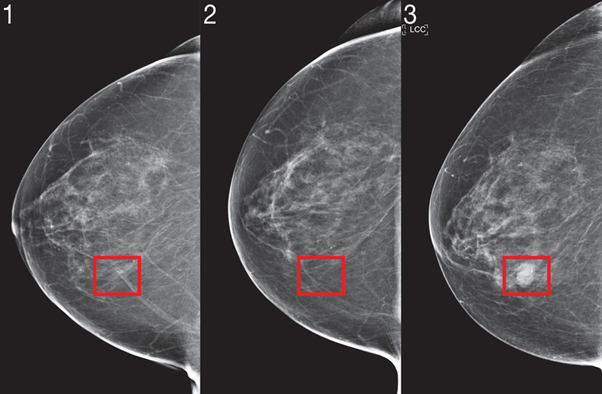 mammography—breast cancer
