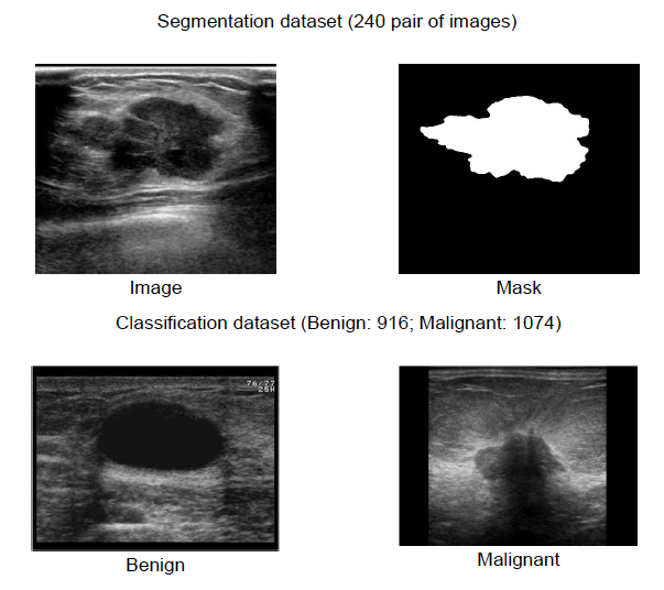 Deep Learning For Improved Breast Cancer Monitoring Using A