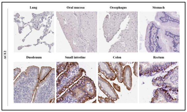 Immunohistochemical images of ACE2 expression in different tissues.