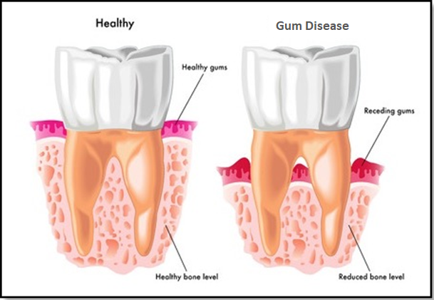 How To Reverse Receding Gums From Getting Worse