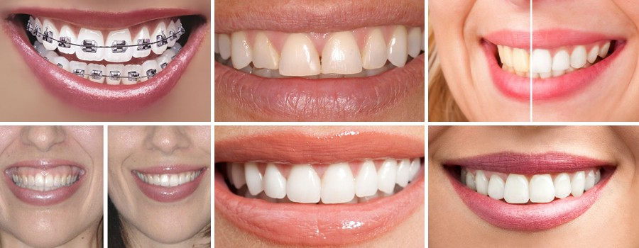 The Root Canal Treatment And Teeth Whitening From An Experienced