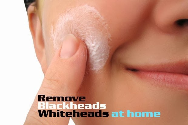 natural-home-remedies-for-removing-blackheads-whiteheads