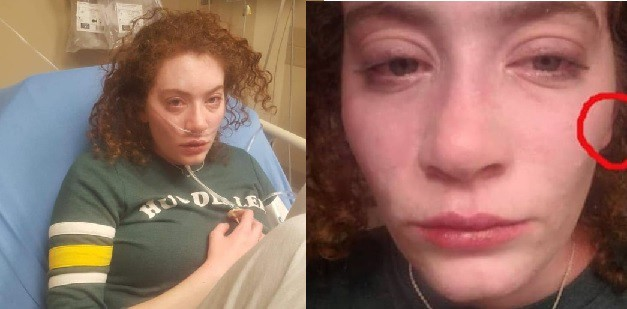 Two photos of the author with facial swelling and hives.