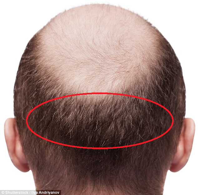 I Got A Hair Transplant — Here's What It Was Like (With Photos