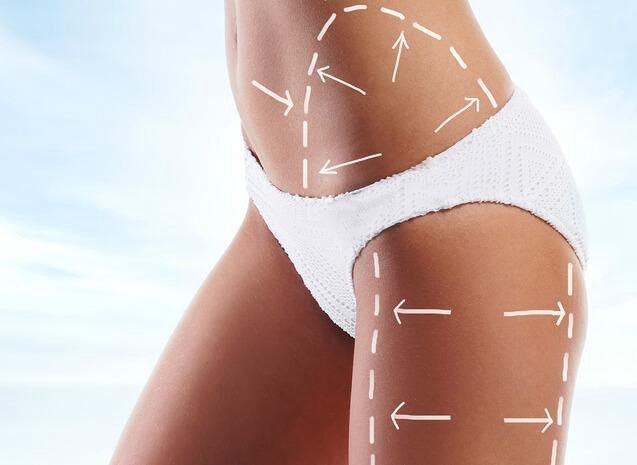 My Cellulite Solution Review 2020 Does It Work Or Not By Xbest Review Medium