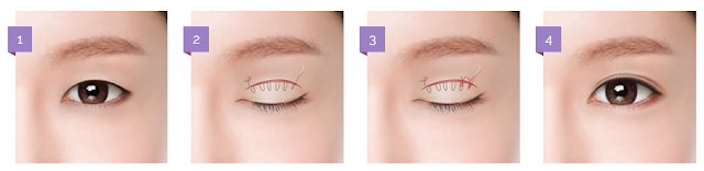 EYE SURGERY — COMBINATIONAL NON-INCISIONAL EYELID SURGERY BY