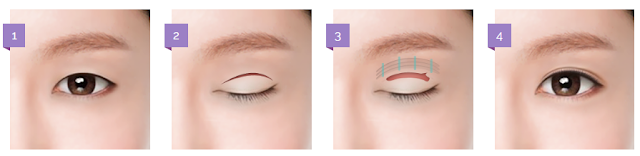 EYE SURGERY — EYELID PTOSIS CORRECTION BY VIEW PLASTIC