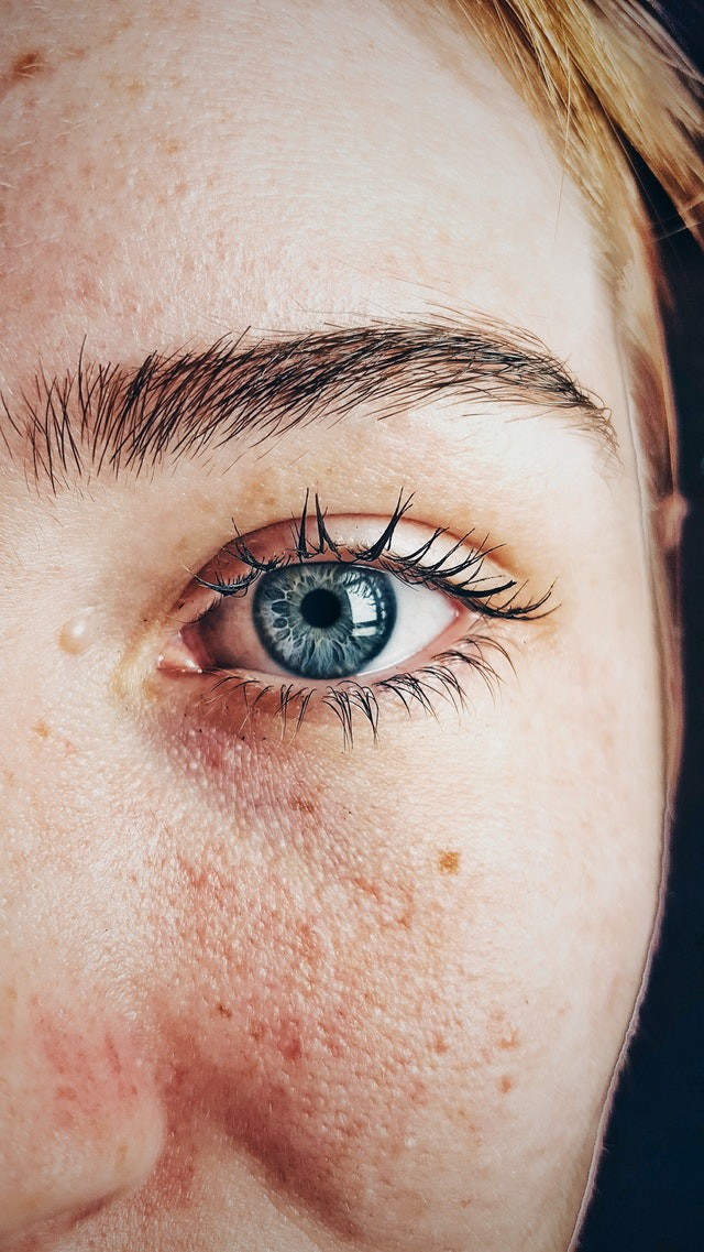 A close-up of a woman's blue eye and imperfect skin.