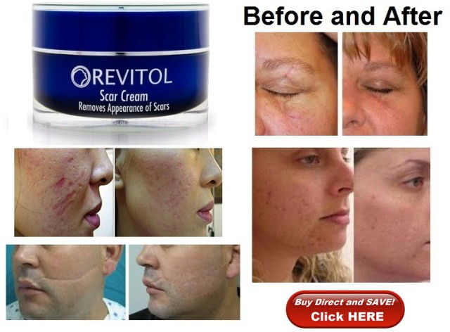 Revitol Pore Minimizer Review Revitol Pore Minimizer Is The Ultimate By Zeb Un Nisa Medium