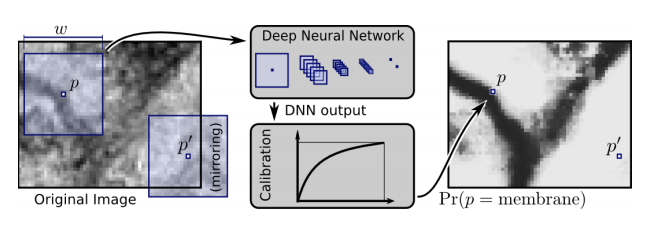 Don't Just Scan This: Deep Learning Techniques for MRI