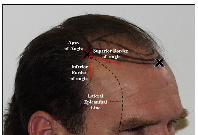 Principles & Techniques Used to Create a Natural Hairline in