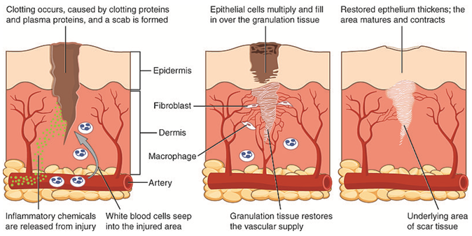 as the body engages in wound healing, a biochemical process takes place  throughout body systems  it traditionally can be explained in terms of 4  classic