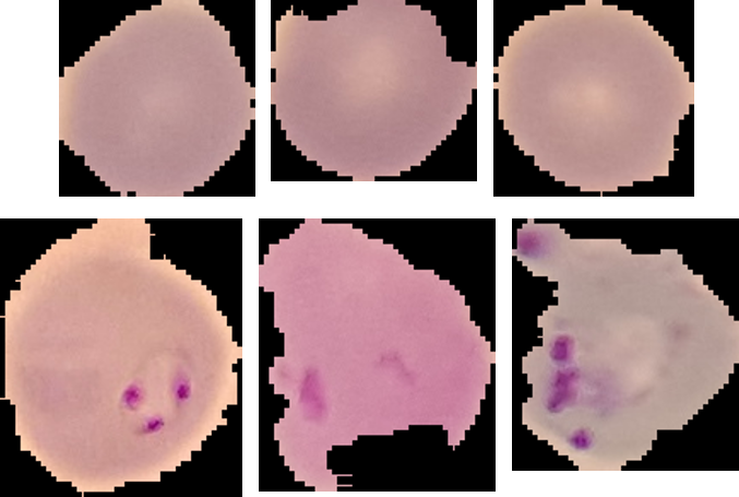 Using PyTorch to Generate Images of Malaria-Infected Cells