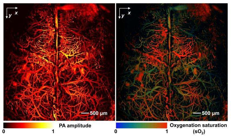 Photoacoustic imaging of vein patterns and their oxygen saturation. Scientists are using this to monitor blood flow