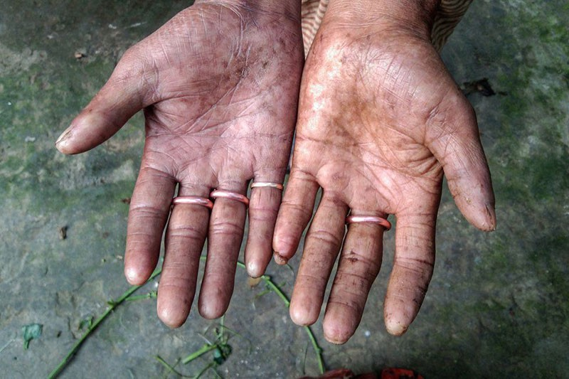 The family born without fingerprints »TwistedSifter
