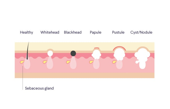 types of acne blackheads, whiteheads, and beyond curology papule pimple dr pimple popper reveals the one thing