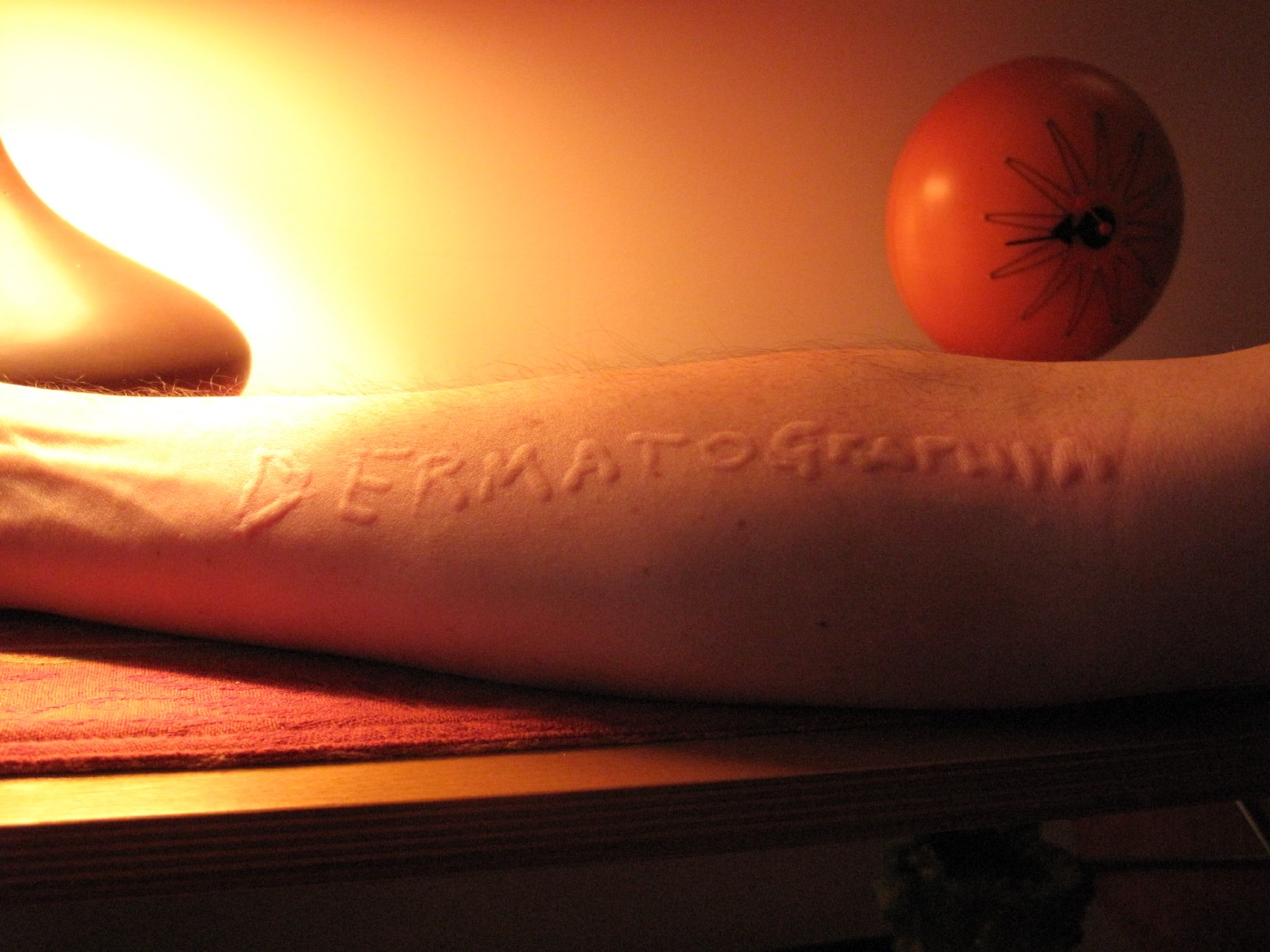 https://commons.wikimedia.org/wiki/File:Dermatographia.JPG