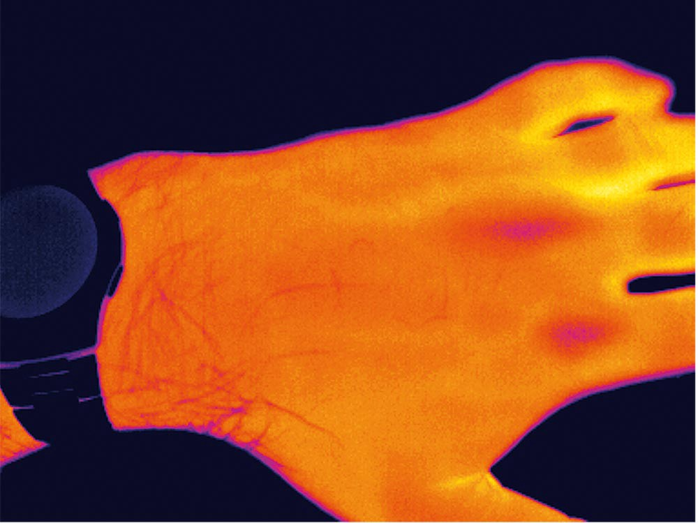 Infrared cameras detect infrared radiation precisely enough to showcase the vein patterns on a person's hand.