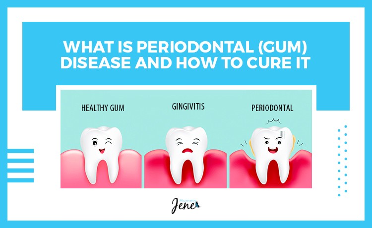 What Is Periodontal Disease And How To Cure It?