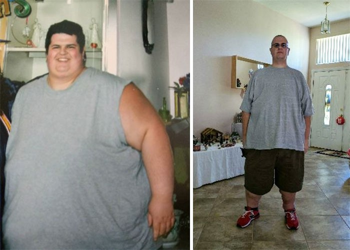 10 Breathtaking Before-And-After Weight Loss Pics You Wont Feel Show