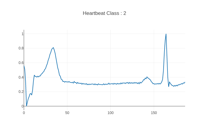 Heartbeat Classification : Detecting abnormal heartbeats and heart