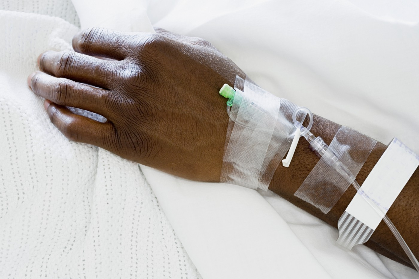 Closeup of hand of a patient at hospital with IV drip.