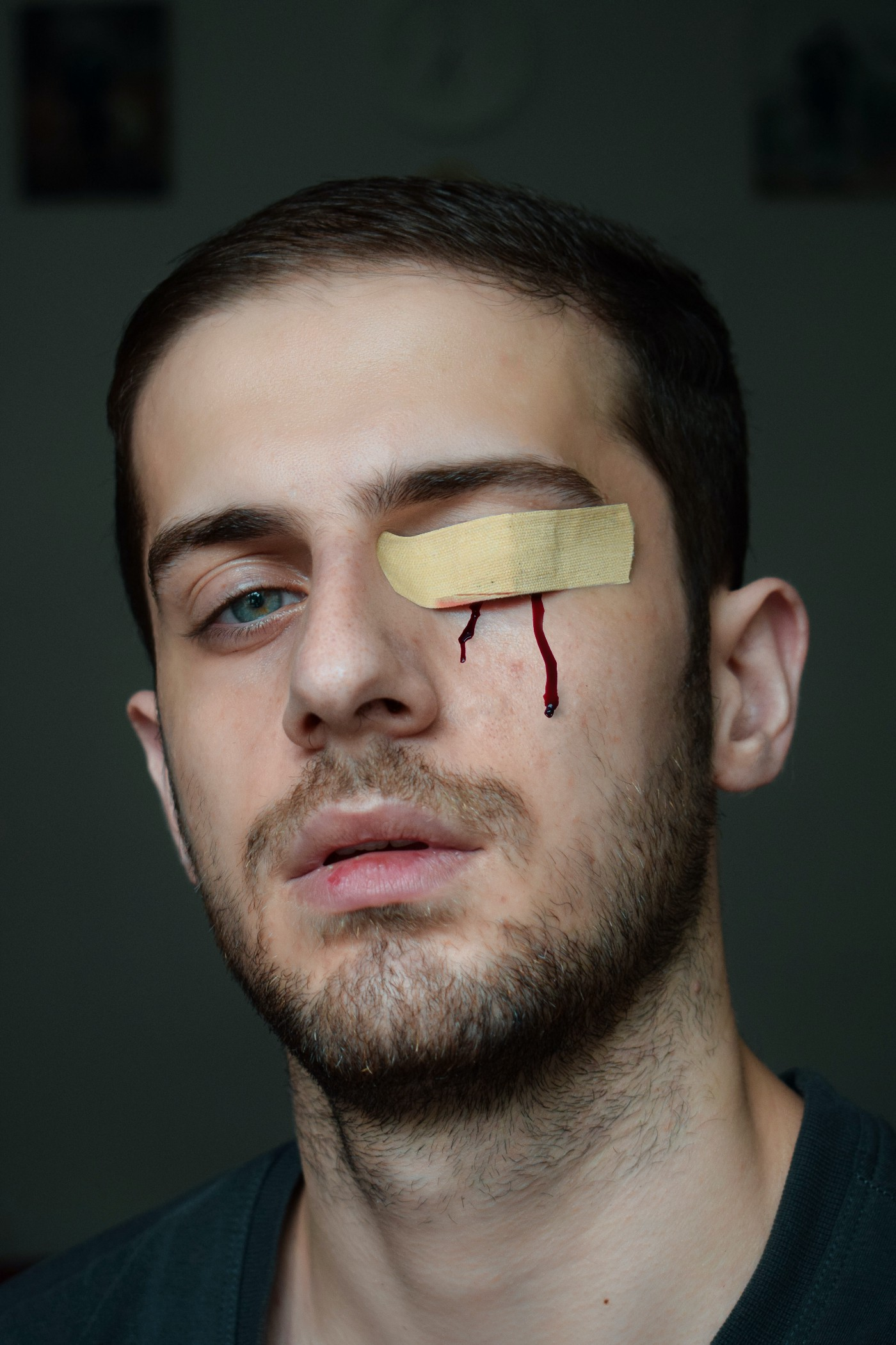 Person with bandaid over one eye and two drips of blood running down cheek from behind bandaid.