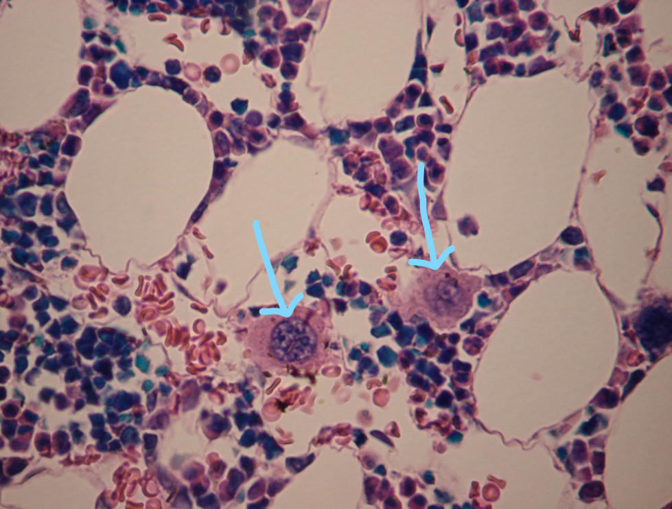 An image of a slide of bone marrow, featuring two megakaryocyte cells