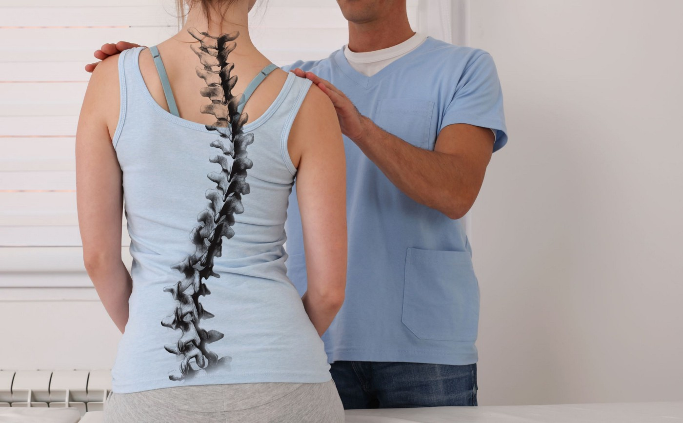 Woman with a graphic of a side-to-side scoliosis curvature on her back.