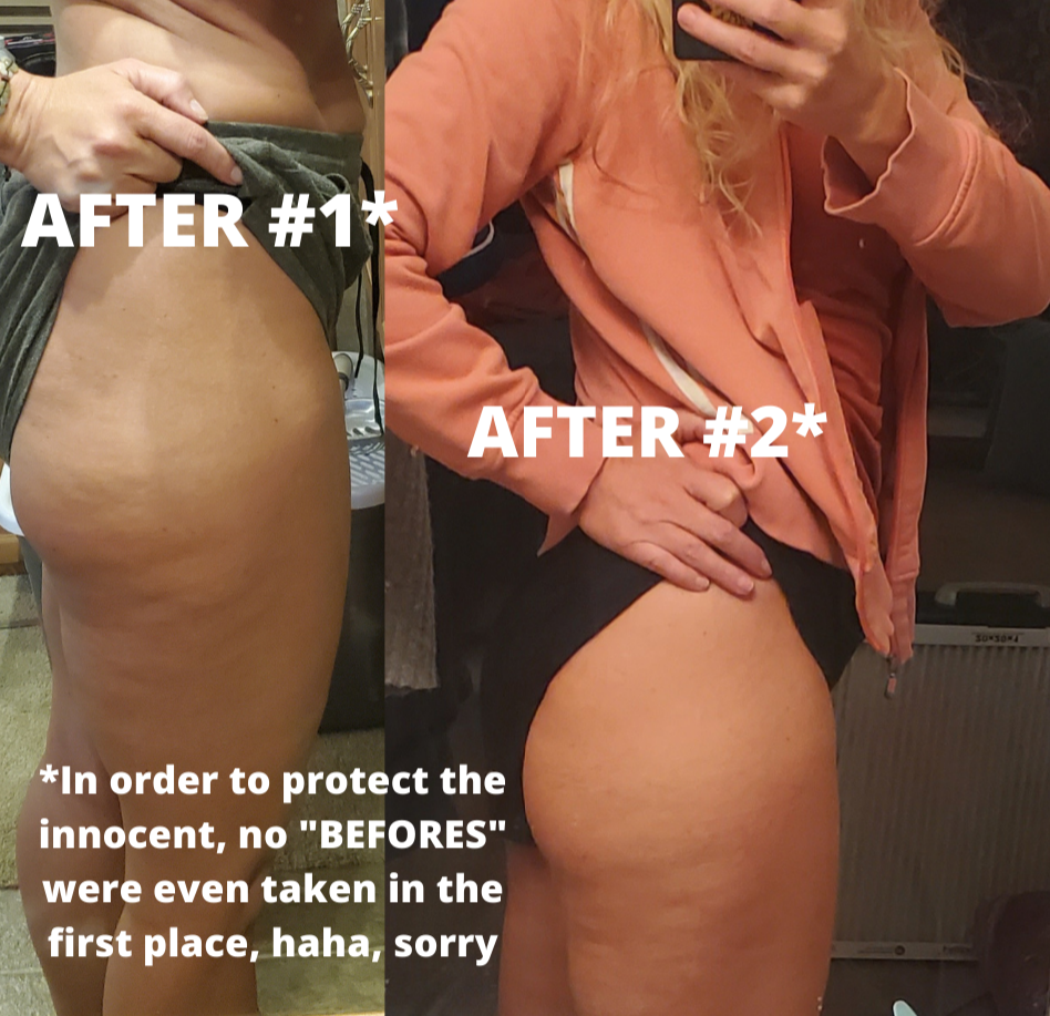 writer's thighs and buttocks cellulite results before and after evergreen eden health wellness weight loss toning dimples cottage cheese slim toned