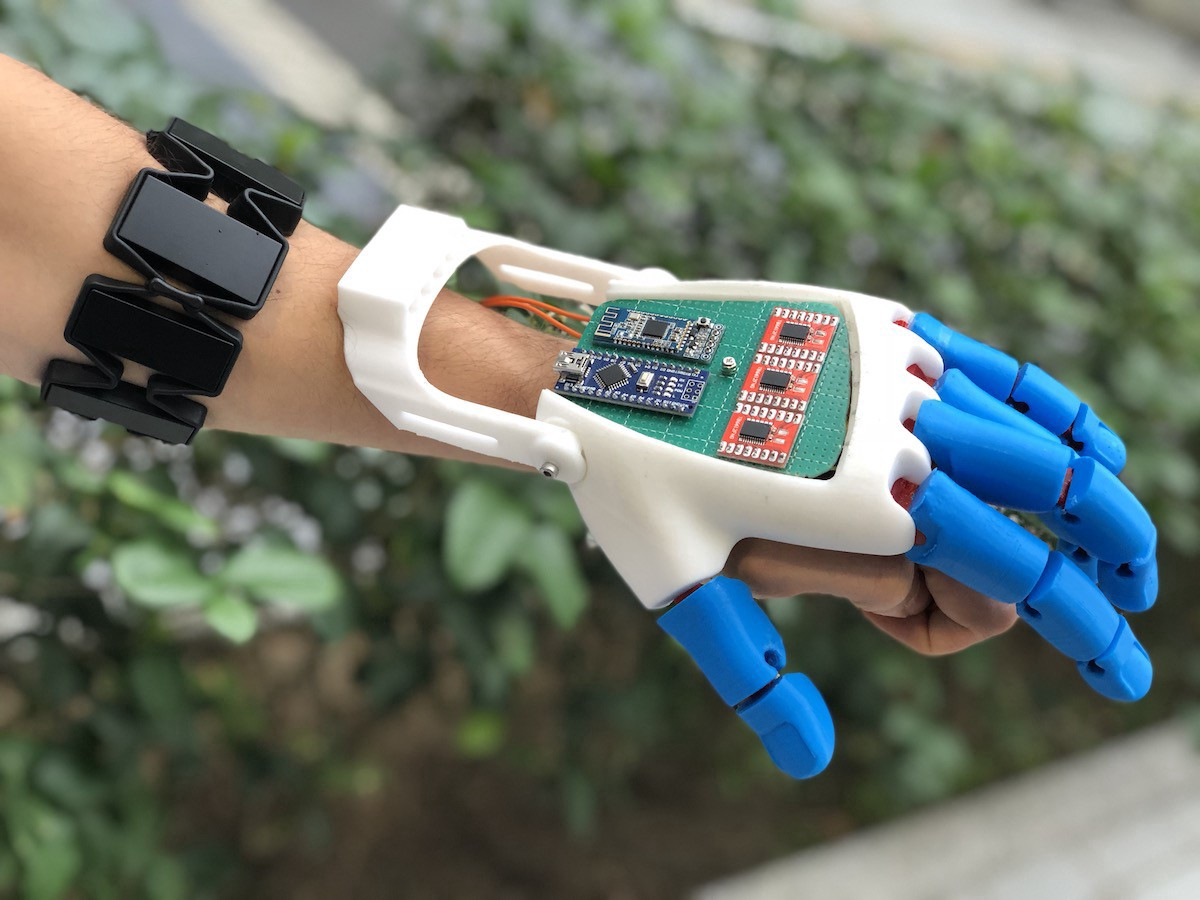 A man wears a prosthetic hand attachment